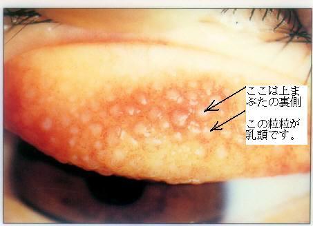 巨大 乳頭 結膜炎 目薬